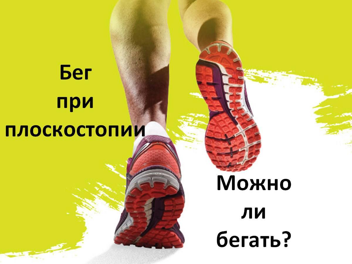 Бег при плоскостопии. Можно ли бегать?