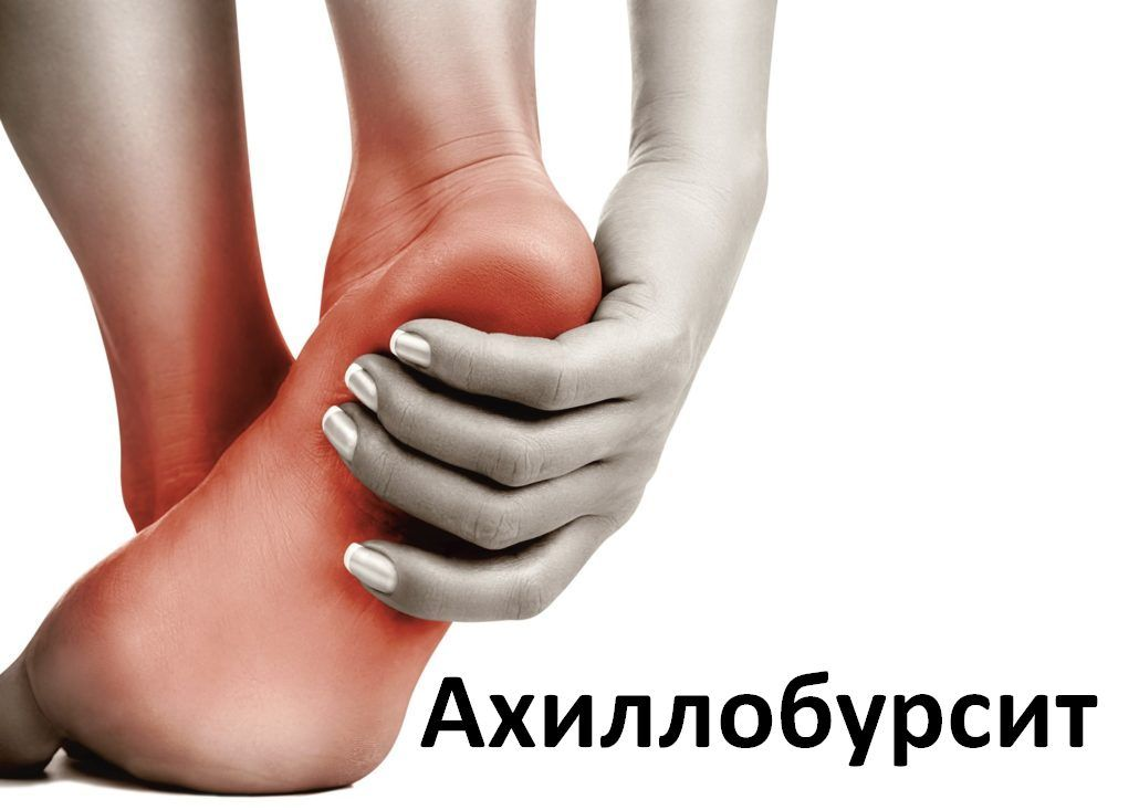 Укрепление голеностопа. Упражнения_Ахиллобурсит
