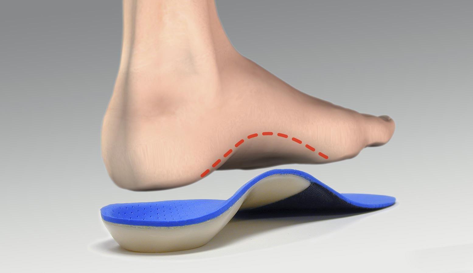Ортопедические стельки для бега и для бега при плоскостопии