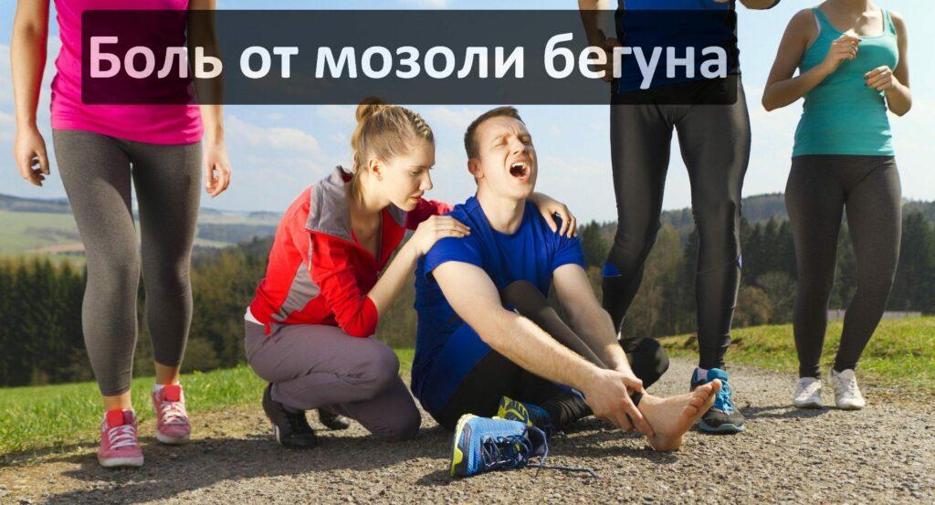 Причины появления мозолей от бега