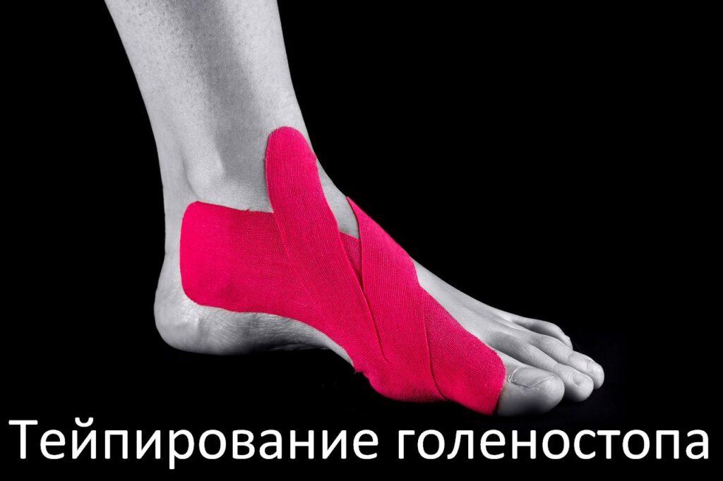 Тейпирование ног для бега