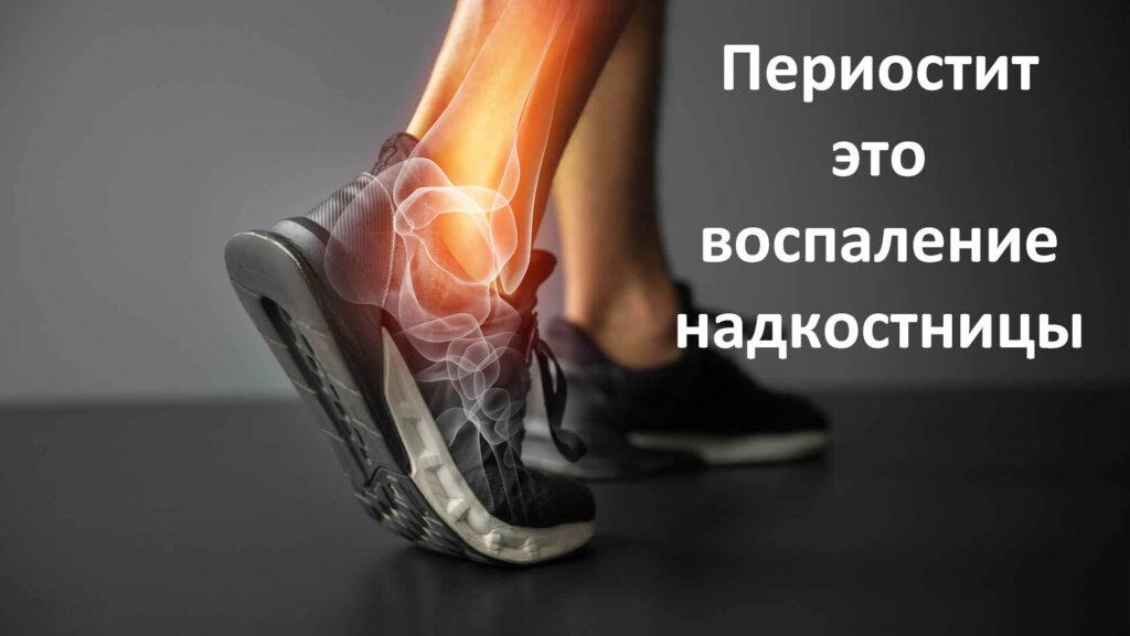 Боль в голени после бега