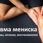 Травма мениска колена