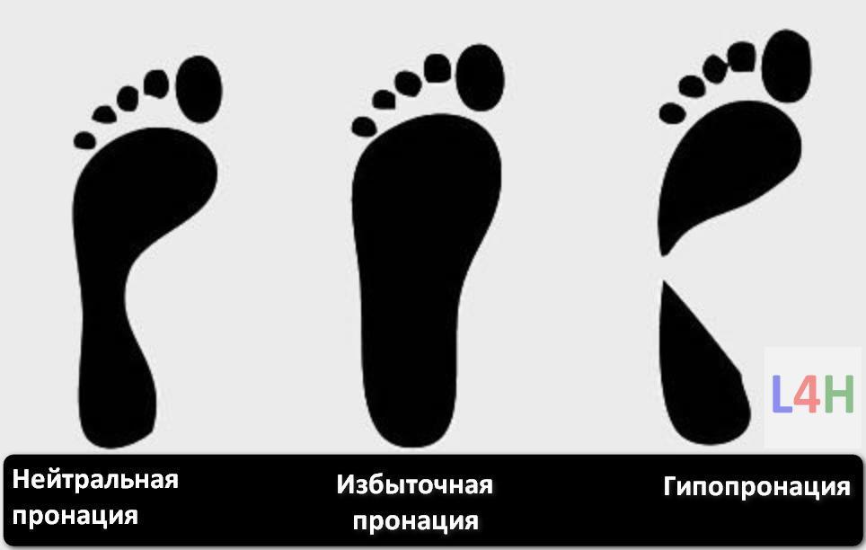 Пронация и супинация стопы. Что это и как ее определить? Виды пронации
