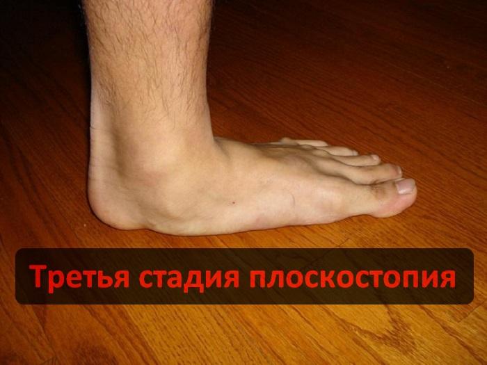 Как выбрать обувь при плоскостопии